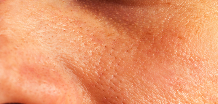 facial skin with open pores