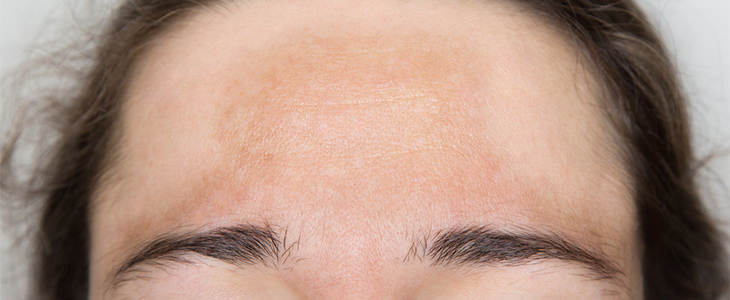 Skin pigmentation on the forehead