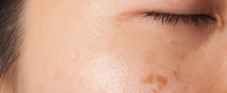 acne on skin