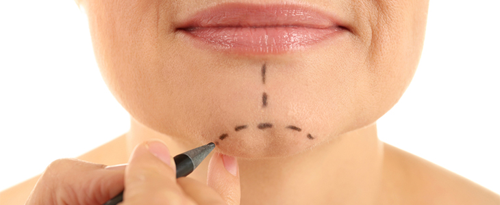 Non-Surgical Facelifts