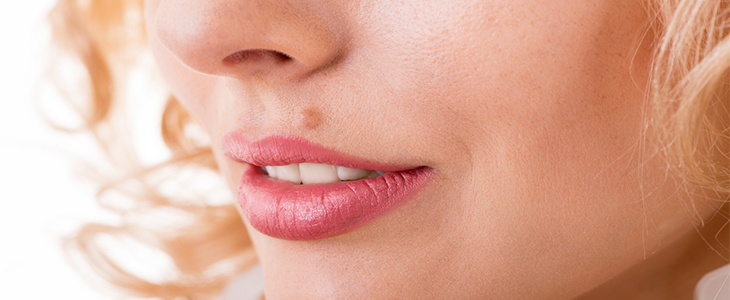 woman with mole on lip