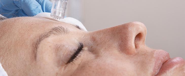 woman having acne treatments