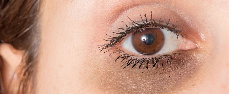 treatments for dark circles around eyes