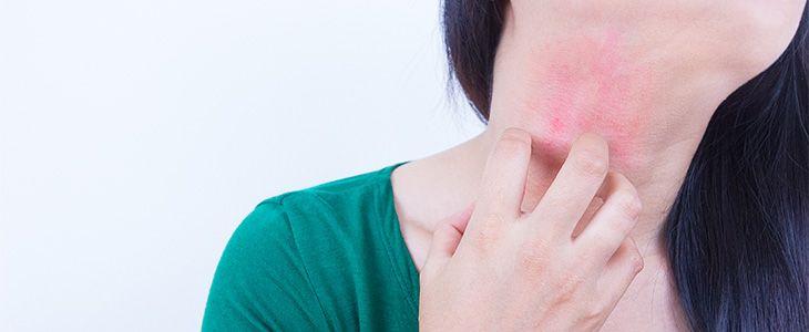 irritating eczema by scratching.