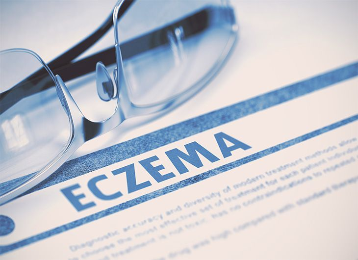 winter skincare what is eczema feature image