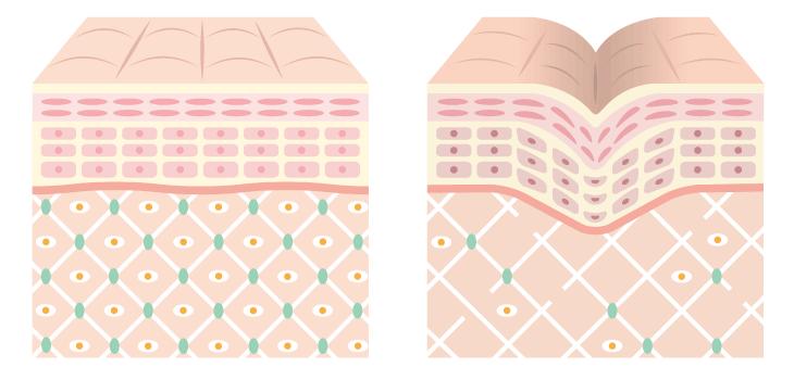 collagen in skincare