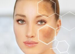Hyperpigmentation image